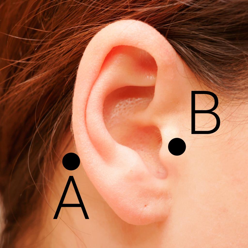 Tinnitus Pen Uygulama Noktaları
